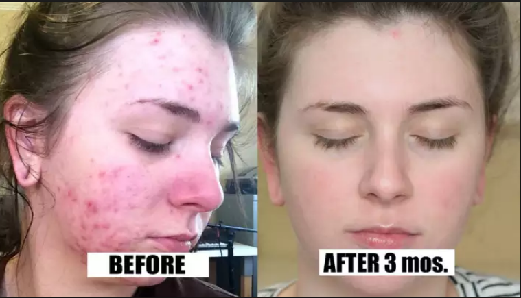 Cure, painful, scar, skin, products, facial cleanse, positive reviews ,