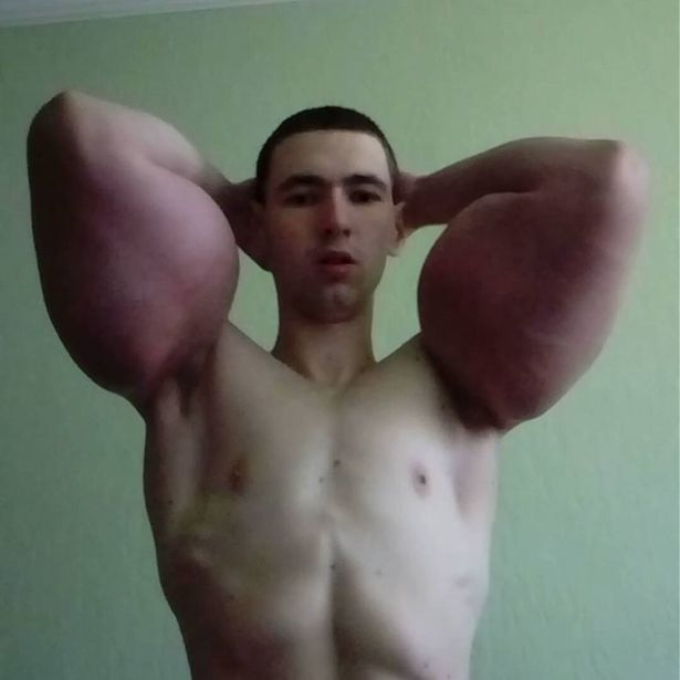 surgery, adopted, real-life , criticism , popularity, inflammation, Synthol, media,