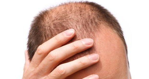 Hair Loss, reaons, age, stress, depression,theemrgingindia , emerging, india