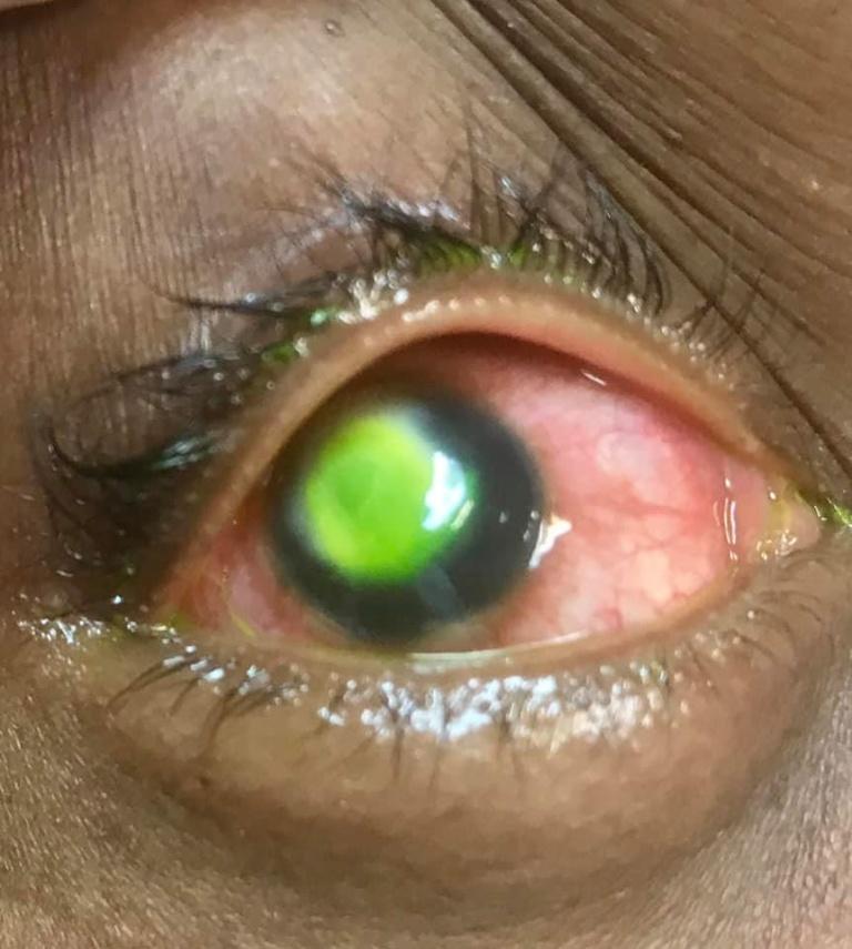 woman, cornea, bacteria, doctor, patient, habit, sleeping, Contact Lenses, eye,
