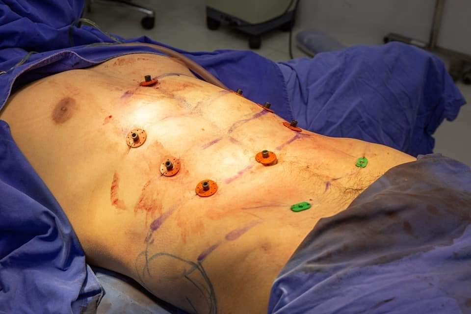 Six-pack, abs, surgery, gym, dream,