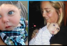 Baby, born, proves, doctors, decision , Microhydranencephaly ,