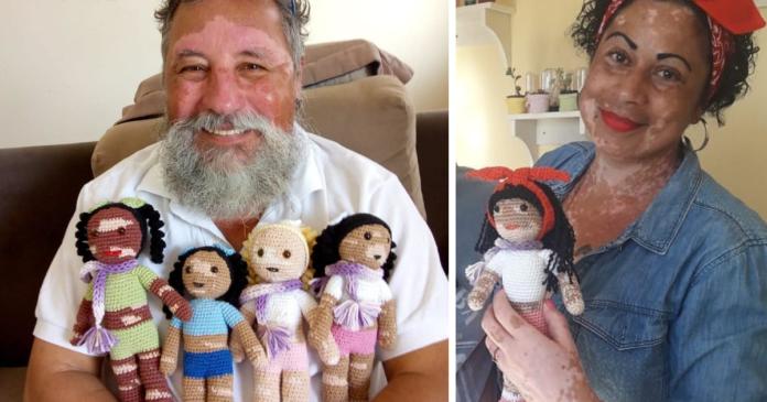 Grandfather, Crochets Dolls , Vitiligo , Children , sharp margins, pigment,
