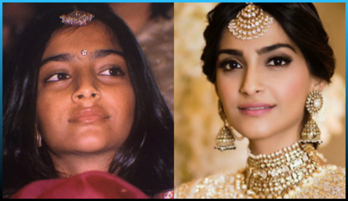 shocking transformation, Bollywood actresses, beauties , knife , undergone