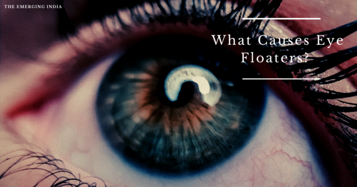 What Causes Eye Floaters? Symptoms, Treatments & Causes